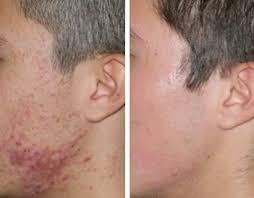 salicylic acid shoo for african american hair this amazing skin peel is formulated with 20 salicylic acid