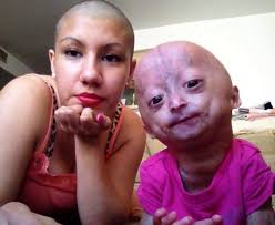 adalia rose the six year old girl with body of an old woman due to