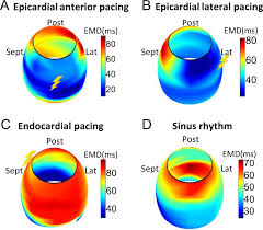 validation of electromechanical wave imaging in a canine model