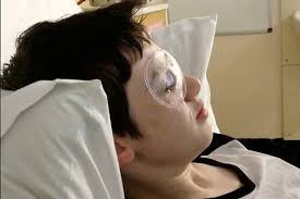 Partially Blind Boy Left Partially Blind After Impaling Eyeball On U0027fake