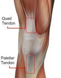 Lateral Patellar Ligament How To Fix Patellar Tendon Pain U2013 Squat University