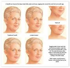 haircuts hide jowls hairstyles for women over 50 hide jowls hairstylegalleriescom