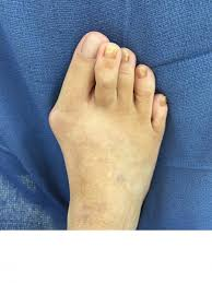 expert insights on treating plantar plate tears podiatry today