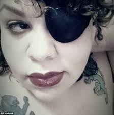 Blind In One Eye Depth Perception Florida Woman Nearly Dies Of Blood Poisoning After Getting Glitter