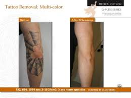 pricing take it off laser tattoo removal louisville kentucky
