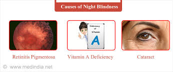 How Is Color Blindness Caused Night Blindness Causes Symptoms Diagnosis Treatment U0026 Prevention