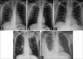 Radiology Of Thorax Chest Tuberculosis Radiological Review And Imaging