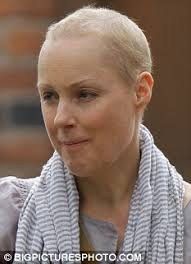 hair three months after chemo coronation street star sally dynevor gives a smile as her hair
