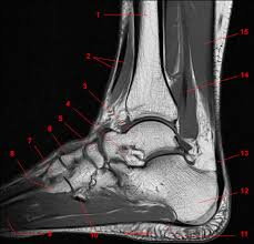 Mri Sectional Anatomy Mri Of The Ankle Detailed Anatomy