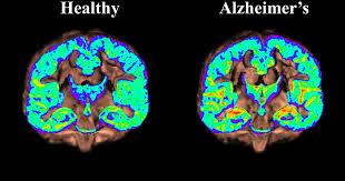 Atlas Help Alzheimer U0027s U0027atlas U0027 Of Human Brain Will Help Detect First Signs