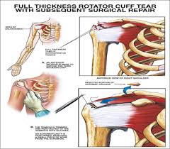 Rotator Cuff Injury From Bench Press Rotator Cuff Tear Symptoms Man Of Steel Workout Pdf Download