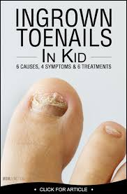ingrown toenail in kids 6 causes and 6 treatments remedies