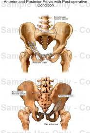 Human Anatomy Anterior Anterior And Posterior Pelvis With Post Operative Condition