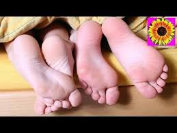 prevention and natural treatment for dry and cracked feet common
