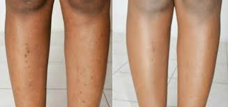 how to remove ingrown hair in thigh ingrown hair scars on stomach face legs bikini healthy beauty