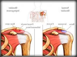 Rotator Cuff Injury From Bench Press Shoulder Pain During Bench Press Militariart Com