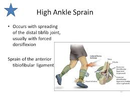 Anterior Distal Tibiofibular Ligament Musculoskeletal Diseases And Disorders Ankle And Foot Ppt Download