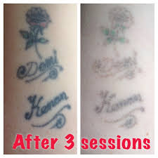 amazing results after only 3 sessions with the laser before and