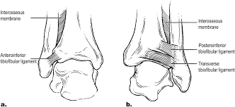 Anterior Fibular Ligament High Ankle Sprain Archives Ssor Physical Therapy