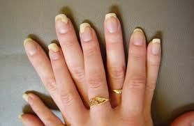 hazards of acrylic nails