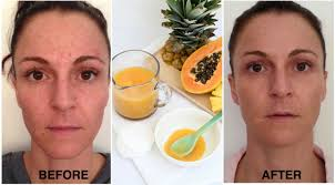 Pumpkin Enzyme Peel Before And After by Transform Your Skin With The Magic Of Enzyme Peels