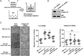 lung epithelial cell u2013derived microvesicles regulate macrophage