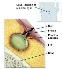 pilonidal cyst location pilonidal cyst causes symptoms and surgery