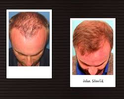 dhi hair transplant reviews dhi direct hair implantation hair loss clinic in petaling jaya