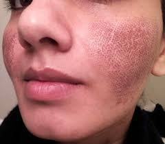 Face Acne Map Frustrated From Your Acne Saga Online Download Chinese Face Map U