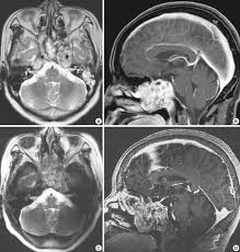 Sagittal Brain Mri Anatomy 1 5t And 7 0t Mri For Chordoma The T2 Weighted Axial And