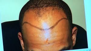 fue black man hair transplant result minimal scar receding hair