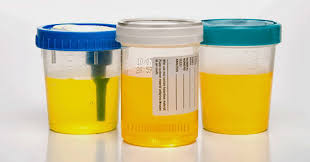 7 urine colors that can tell you important things the unbounded