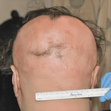 new hair growth discoveries in search of a hair loss cure how close are we really