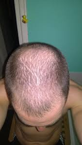 almost 29 hairloss story hairlosstalk forums
