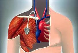chambre implantable infirmier qu est ce qu une chambre implantable cpi ou dvi ou port a cath