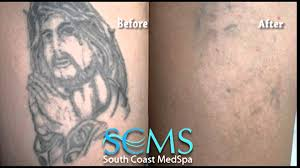 los angeles laser tattoo removal before after photos youtube