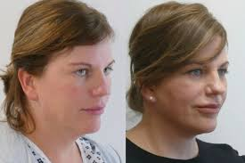 hairstyles that cover face lift scars face lift neck lift cosmetic surgery for women