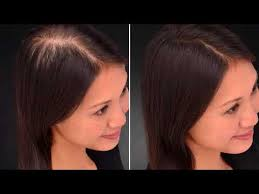 rogaine for women success stories the best hair loss concealers for 2018 dermmatch toppik reviews