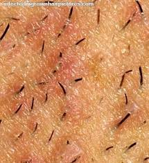 does prids work on ingrown hairs 47 best ingrown hair images on pinterest beauty tips and dupes