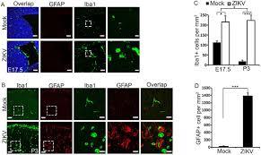 zika virus infection disrupts neurovascular development and