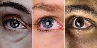 what your can tell you about your health eye problems