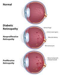 Diabetic Blindness Diabetic Retinopathy Petrou Eye Care