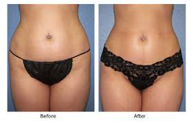 lipo light laser treatment reviews exposing lipolite find everything about lipolite