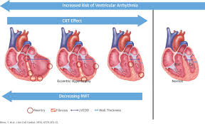 Heart Wall Anatomy Relative Wall Thickness And The Risk For Ventricular