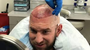fue hair transplant surgery in los angeles best fue hair