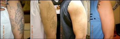 laser tattoo removal reno tattoo modification tattoo fading
