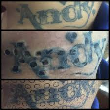 11 best tattoo removal images on pinterest tattoo removal the o