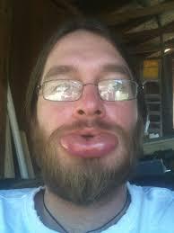 Big Lips Meme - so i got stung on my lip by a honey bee wtf