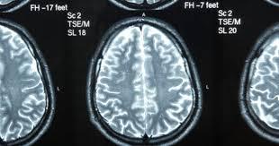 What Portion Of The Brain Controls Respiration What Do The Parts Of The Brain Control Livestrong Com