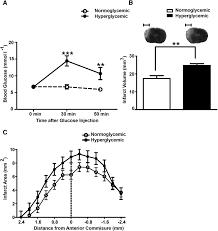 hyperglycemia in stroke impairs polarization of monocytes